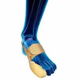 Тканевый бандаж для отведения первого пальца стопы при вальгусной деформации